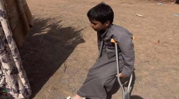 إصابة طفل بانفجار لغم حوثي في قانية بالبيضاء