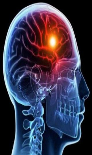 السكتة الدماغية لدى الشباب.. أسباب كثيرة وأرقام مثيرة للقلق