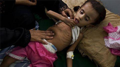 """برنامج الأغذية العالمي: """"ظروف تشبه المجاعة"""" في مناطق باليمن"""